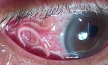 VIDEO: Medicii au scos un vierme de 15 cm din ochiul unui barbat. Cum a ajuns acolo